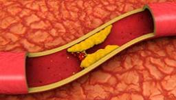 Снижаем вредный холестерин